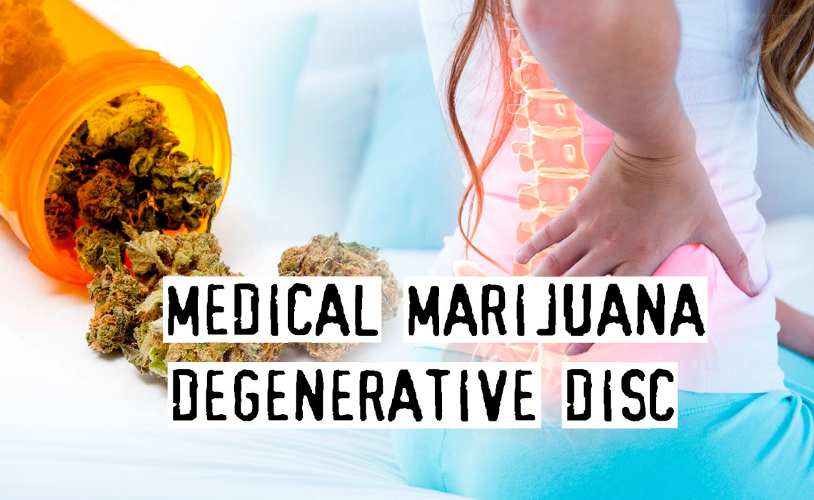 Medical Marijuana To Deal With Degenerative Disc Disease, Effective Or Not?