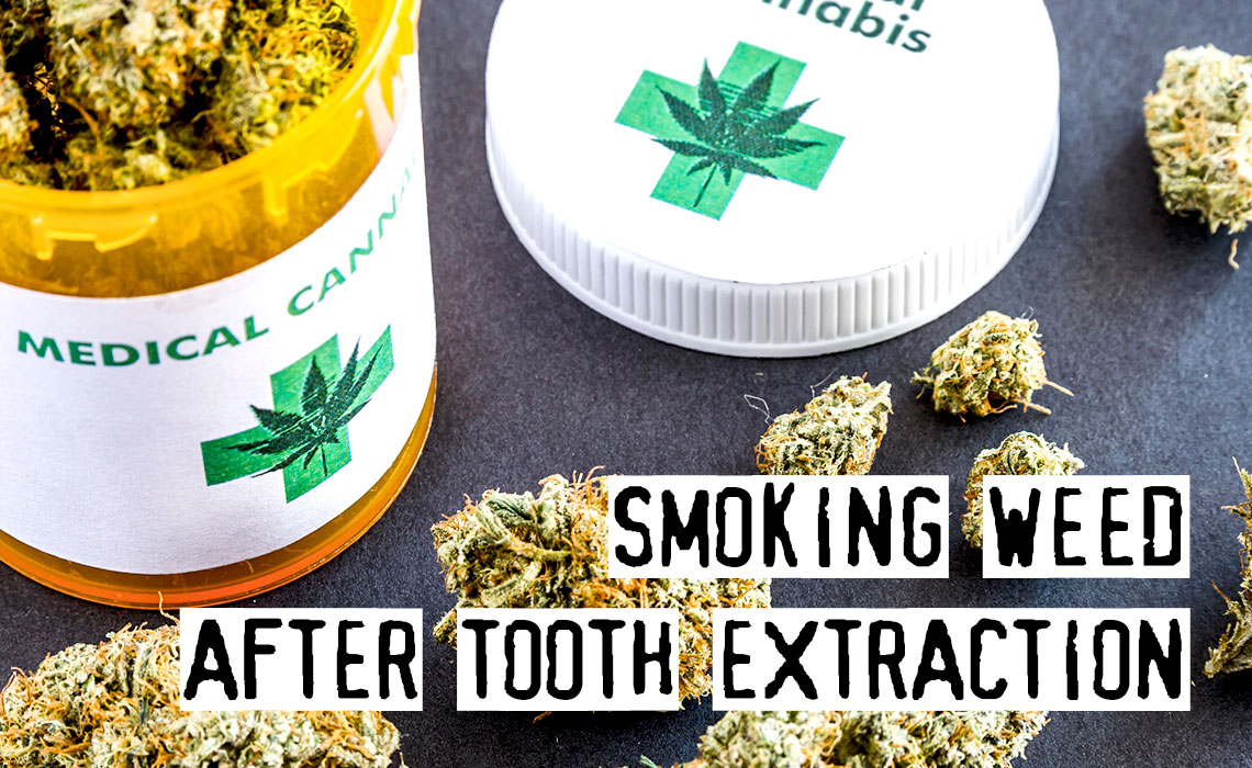 Smoking Weed after Tooth Extraction